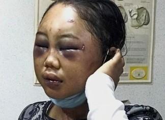 foto : Seorang tenaga kerja wanita (TKW) asal Indonesia babak belur dianiaya majikannya di Malaysia